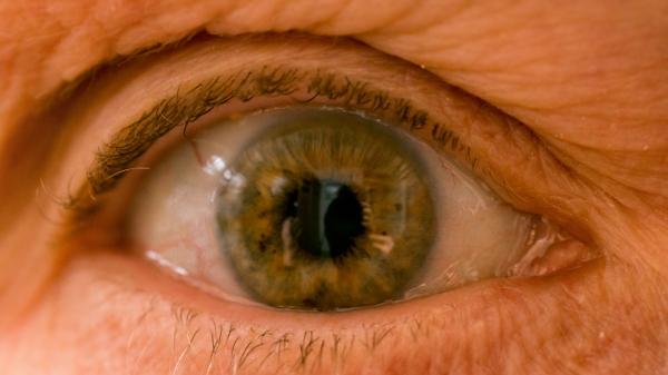 Pupil-2